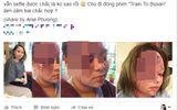 Cộng đồng mạng - Sự thật sau bức ảnh vợ bị chồng tẩm xăng đốt biến dạng khuôn mặt