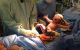 Bé trai tự bò khỏi bụng mẹ giữa ca sinh gây sốt