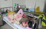 Xác định nguyên nhân khiến hơn 100 người dân Huế bị ngộ độc khi ăn bánh mì