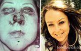 Ngạc nhiên với loạt hình ảnh trước và sau khi bỏ thuốc