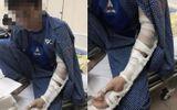 Hà Nội: Đánh người nhập viện vì tranh giành chỗ dán quảng cáo thông bể phốt
