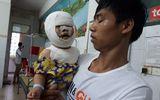 Bé 9 tháng tuổi bị biến dạng mặt vì ngã vào bếp lửa