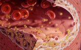 Sức khoẻ - Làm đẹp - Những bài thuốc giúp làm sạch mỡ máu nhanh, hiệu quả