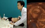 Người phụ nữ đau bụng bất thường, bác sĩ siêu âm và nghe thấy có 5 tim thai