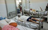 Vít rơi trúng ổ điện, 3 công nhân bị bỏng, bệnh viện mất điện