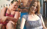 Giảm cân cực đoan, bà mẹ trẻ từ béo phì thành người gầy đến rụng cả tóc