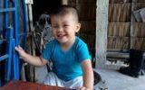 Đời sống - Hình ảnh mới nhất của bé trai bị đâm xuyên não cách đây hai năm