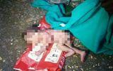 Cha mẹ bỏ trong thùng rác, bé sơ sinh bị kiến bu đầy