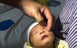 Hành động này của mẹ khiến bé sơ sinh bị loét giác mạc