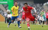 Thể thao - Chàng trai mất 1 chân và cú ghi bàn đẹp mắt