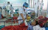 Nuốt mật cá trắm 5kg, người đàn ông nhập viện cấp cứu vì  suy gan, suy thận