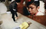 Mẹ kế cầm đũa vụt vào mặt con chồng 10 tuổi vì ăn vụng thịt bò