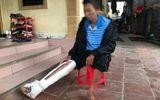 Tin tức - Vụ con trai đánh bố gãy xương sườn: Hành động trái luân thường đạo lý