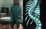 Sau phẫu thuật xương sống, cô gái cao thêm 7cm