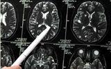 Sán đóng kén trog não, mất 10 năm điều trị vì ngỡ... tâm thần