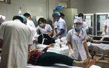 Nổ lớn ở công ty giầy da, 4 người bị thương nặng, 1 người đứt rời chân