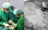 Tin tức - Tự uống lá thuốc điều trị suốt 4 năm vì sợ mổ, đến khi khối u xơ nặng tới 4kg
