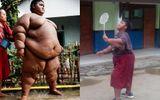Bất ngờ với hình ảnh cậu bé nặng nhất thế giới sau khi giảm cân thành công