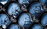 Dừng ca phẫu thuật não vì phát hiện mổ nhầm bệnh nhân