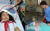 Vụ nữ sinh bị bạn phi dao trúng trán: Bộ GD&ĐT chỉ đạo