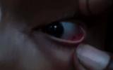 Kinh hoàng phát hiện 60 con kiến làm tổ trong mắt bé gái 11 tuổi