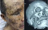 Hơn 100 dị vật trong hàm mặt bệnh nhân được gắp bỏ thế nào?