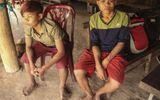 Quảng Bình: Kỳ lạ gia đình nhiều người có 26 ngón tay, chân