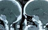 Quyết định sinh tử bóc khối u trong não