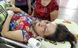 Sét đánh chảy sợi dây chuyền vàng trên cổ người phụ nữ