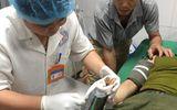 Bác sĩ dùng cưa sắt, cứu bàn tay bệnh nhân mắc trong máy xay thịt