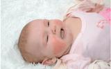 Sức khoẻ - Làm đẹp - Làm thế nào khi trẻ sơ sinh bị rôm sảy?