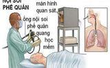 Tin tức - Vụ bệnh nhân tử vong sau nội soi: Bệnh viện Bạch Mai công bố nguyên nhân