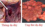 Y tế - Nhầm lẫn tai hại bệnh nhân dạ dày thường mắc phải khi dùng Nano Curcumin