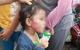 TPHCM: Cô giáo mầm non tát sưng mặt, trật xương hàm bé gái 5 tuổi