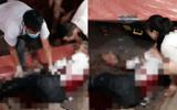 Vụ kẻ bịt mặt chém người tại Nam Định: Nạn nhân kể lại giây phút kinh hoàng