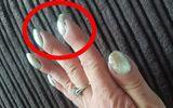 Người phụ nữ phát hiện bị ung thư phổi nhờ đi khám móng tay