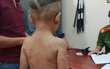 Tin tức - Tin tức pháp luật mới nhất ngày 17/8/2018: Bé trai 3 tuổi bị gã cha dượng đánh đập dã man