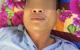 Tin tức - Phú Thọ: Cả gia đình mắc quai bị, chồng và con phải nhập viện điều trị vì biến chứng