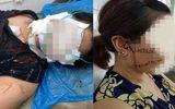 Vụ vợ bị chồng rạch mặt, cắt gân chân: Tiến hành giám định lại sức khỏe nạn nhân