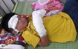 Tin tức - Bé trai 7 tuổi dập nát 2 bàn tay, tổn thương mắt vì nổ điện thoại đang sạc
