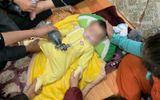 Tin tức - Tin tức đời sống mới nhất ngày 21/11/2018: Chồng tiêm filler làm mù mắt vợ