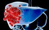 Các cách điều trị ung thư gan phổ biến và hiệu quả hiện nay