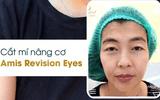Cắt mí Amis Revision Eyes giải pháp để sở hữu đôi mắt vạn người mê