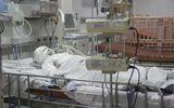 Bố hút thuốc bén lửa vào bình gas, con gái 10 tuổi bỏng nặng