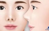 Sức khoẻ - Làm đẹp - Sửa mũi hếch - Dáng mũi chuẩn nhân tướng học