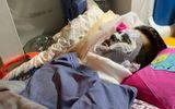 Tin tức - Vụ Việt kiều bị tạt axit, cắt gân chân: Thu giữ lọ axit hung thủ vứt lại hiện trường