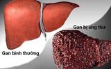 Sức khoẻ - Làm đẹp - Liệu bạn có nằm trong kiểu người dễ mắc bệnh ung thư gan không?