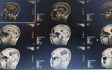 Đời sống - Mổ lấy ổ sán khổng lồ trong não người đàn ông thích ăn tiết canh