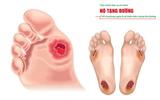 Sức khoẻ - Làm đẹp - Loét bàn chân tiểu đường: Cách chăm sóc tránh hoại tử, đoạn chi