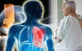 Ung thư phổi giai đoạn 2: Nguyên nhân, đặc điểm, triệu chứng của bệnh
